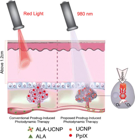 methylaminolevulinate and red light photodynamic therapy in In addition, this systematic review and meta-analysis found that pdt performed with aminolevulinic acid (ala-pdt) with red light or blue light or with methyl aminolevulinate (mal-pdt) with red light was superior to placebo for the treatment of individual ak lesions .