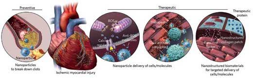 Nano Cardio id48033