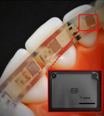 Nano Dental Bracesid48660